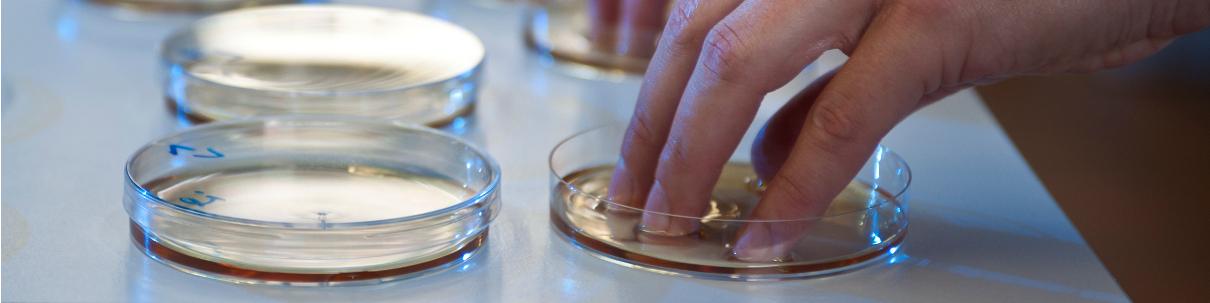 Proband testet Desinfektionsmittel in Petrischalen